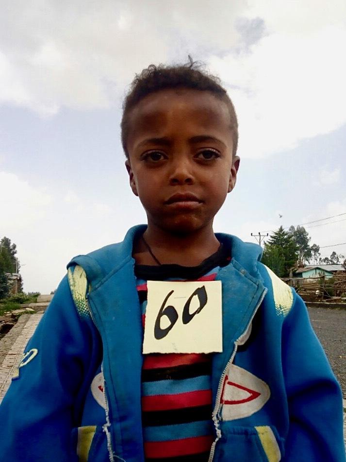 Adeferes Teshome Tadese